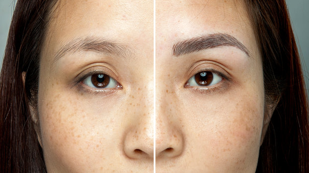 Over-Plucked Eyebrows: Healing Process, micro blading
